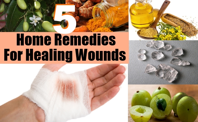Remedies For Healing Wounds
