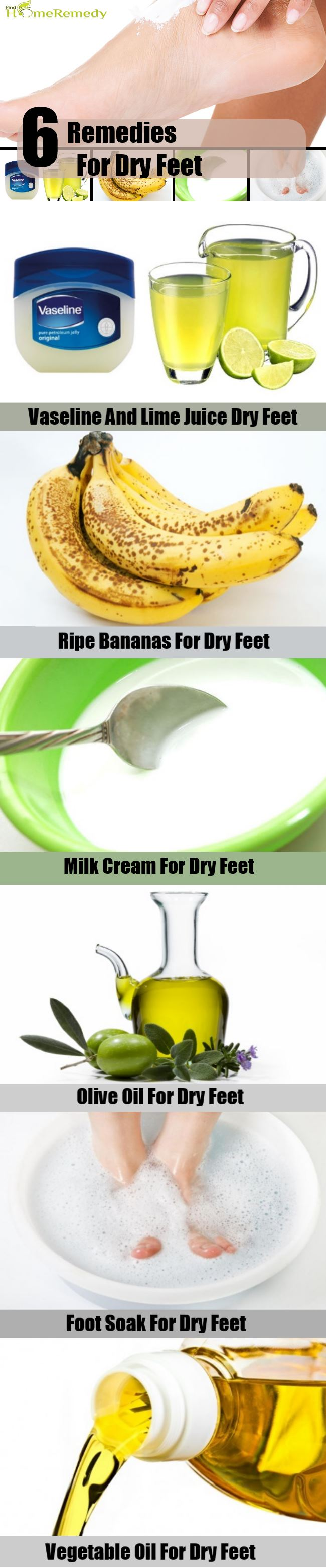 6 Remedies For Dry Feet
