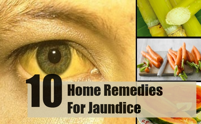 Best Home Remedies For Jaundice Natural Treatments Cure For - Best home remedies for jaundice its causes and symptoms