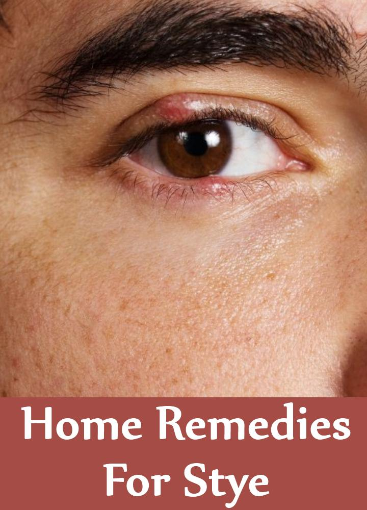 5 Amazing Home Remedies For Stye Natural Treatments Cure For