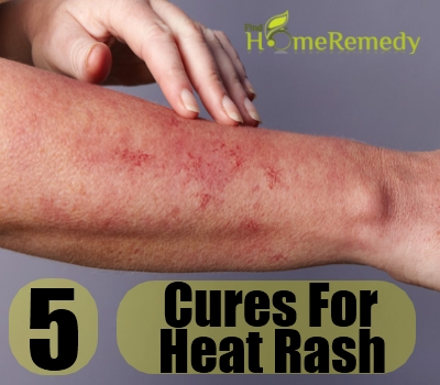 Top 5 Natural Cures For Heat Rash