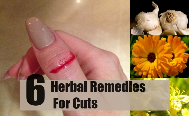 Remedies For Cuts