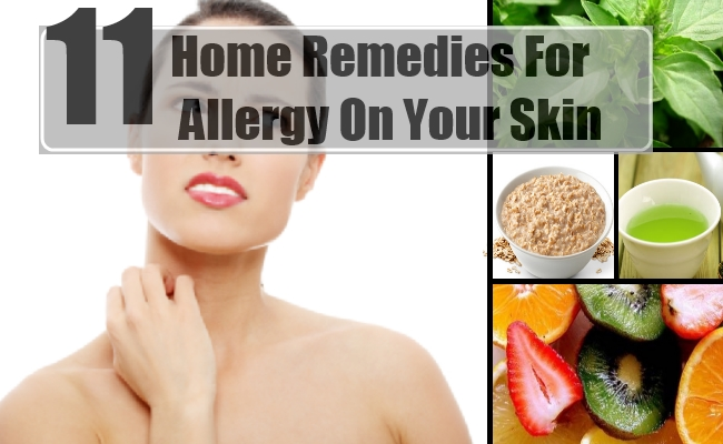 Allergy On Your Skin