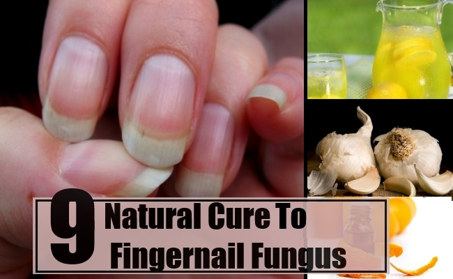 Fingernail Infection Natural Remedy