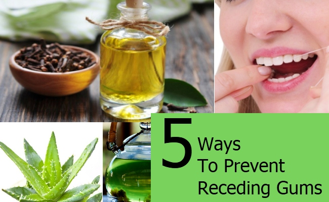 Ways To Prevent Receding Gums