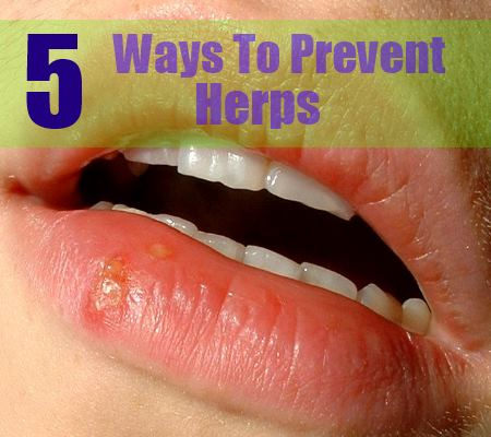 How Many Ways Can Genital Herpes Be Spread? 2