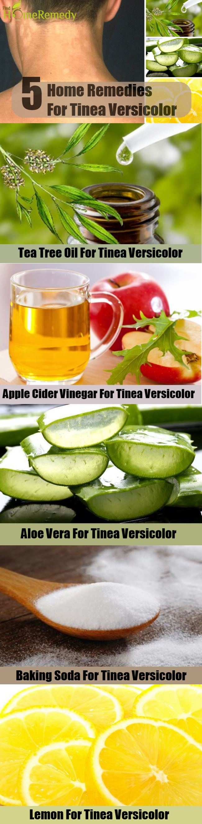 5 Home Remedies For Tinea Versicolor
