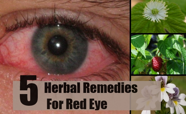 Remedies For Red Eye
