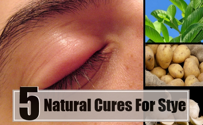 Best And Effective Ways To Cure Stye Naturally Find Home Remedy