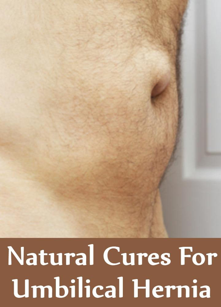 7 Natural Cures For Umbilical Hernia