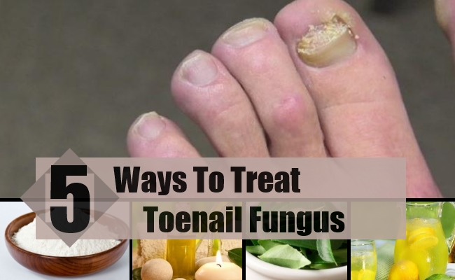 5 Best And Effective Ways For Toenail Fungus Treatments | Find Home ...