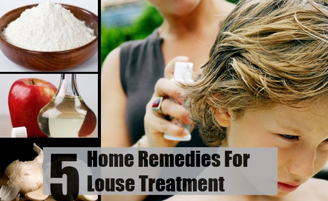 5 Ways To Treat Louse With Home Remedies Find Home Remedy