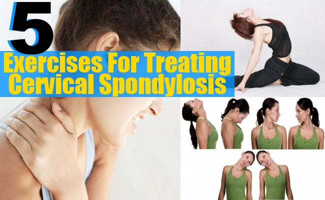 Exercises For Treating Cervical Spondylosis