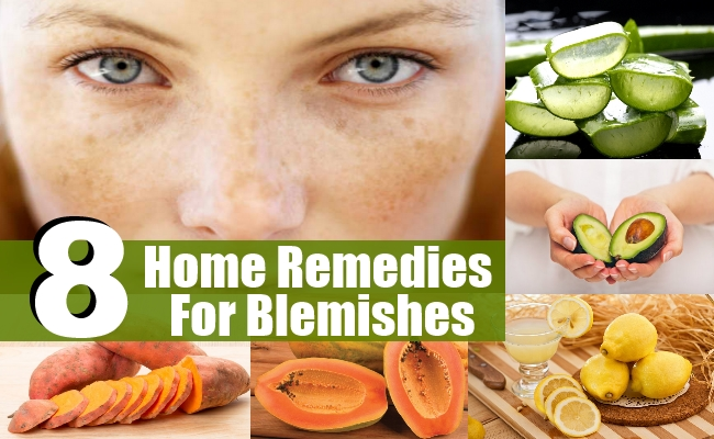 Remedies For Blemishes