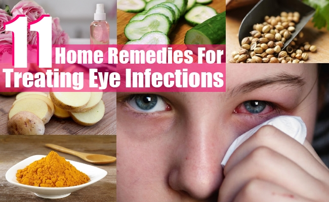 Treating Eye Infections