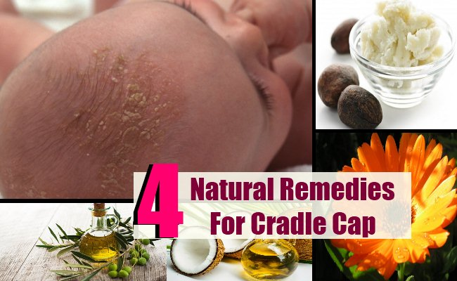 4 Trusted Natural Remedies For Cradle Cap