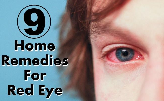 Home Remedies For Red Eye