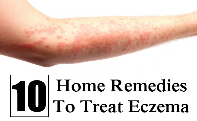10 Home Remedies To Treat Eczema | Find Home Remedy & Supplements