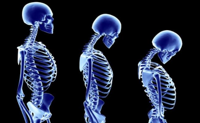 Osteoporosis And Arthritis