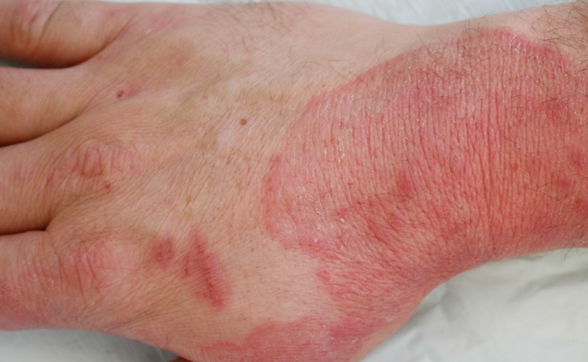 Fungal infections (2)