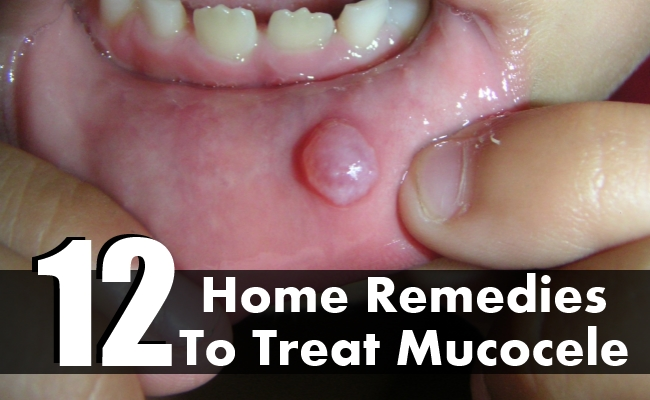 Home Remedies To Treat Mucocele