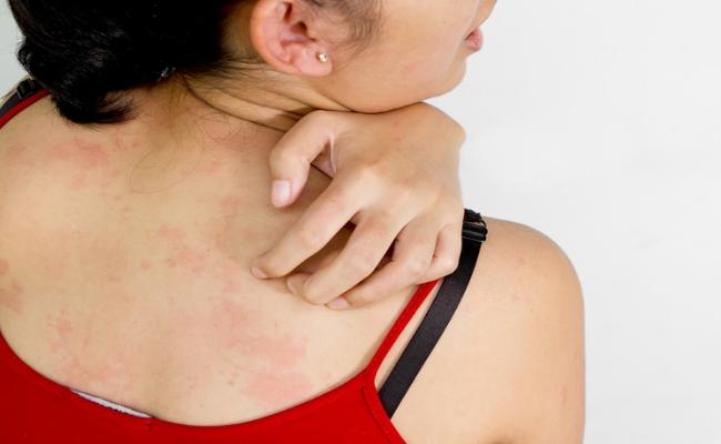 Skin Itching