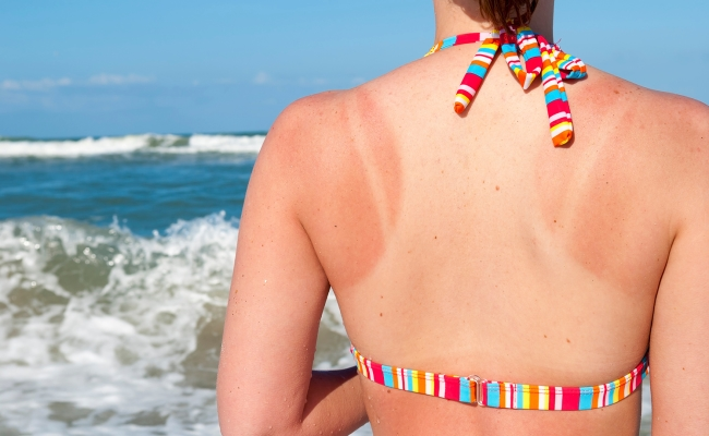 Heals Sunburns