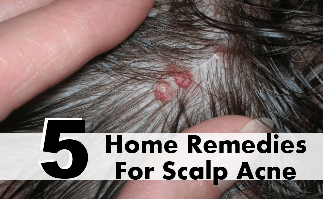 Home Remedies For Scalp Acne