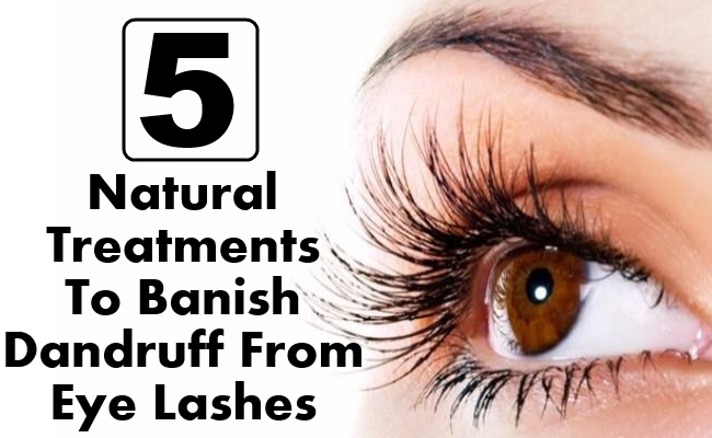 Natural Treatments To Banish Dandruff From Eye Lashes