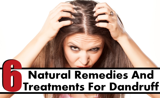 Natural Remedies And Treatments For Dandruff
