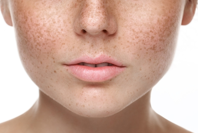 8 Natural Ways To Get Rid Of Brown Spots On Skin