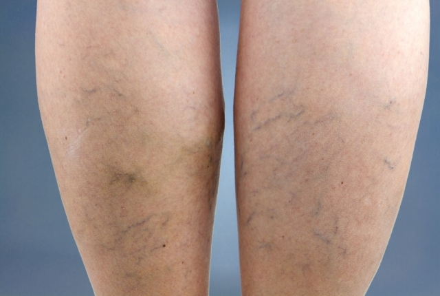 Manages Varicose Veins