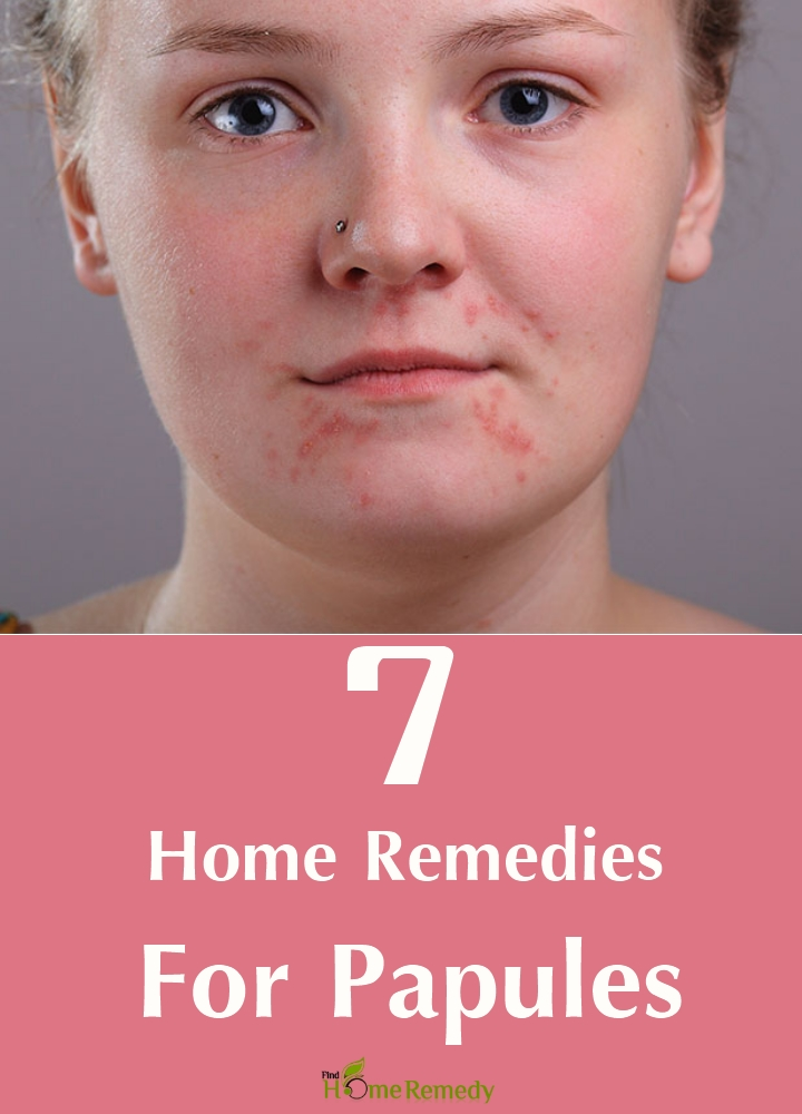Home Remedies For Papules
