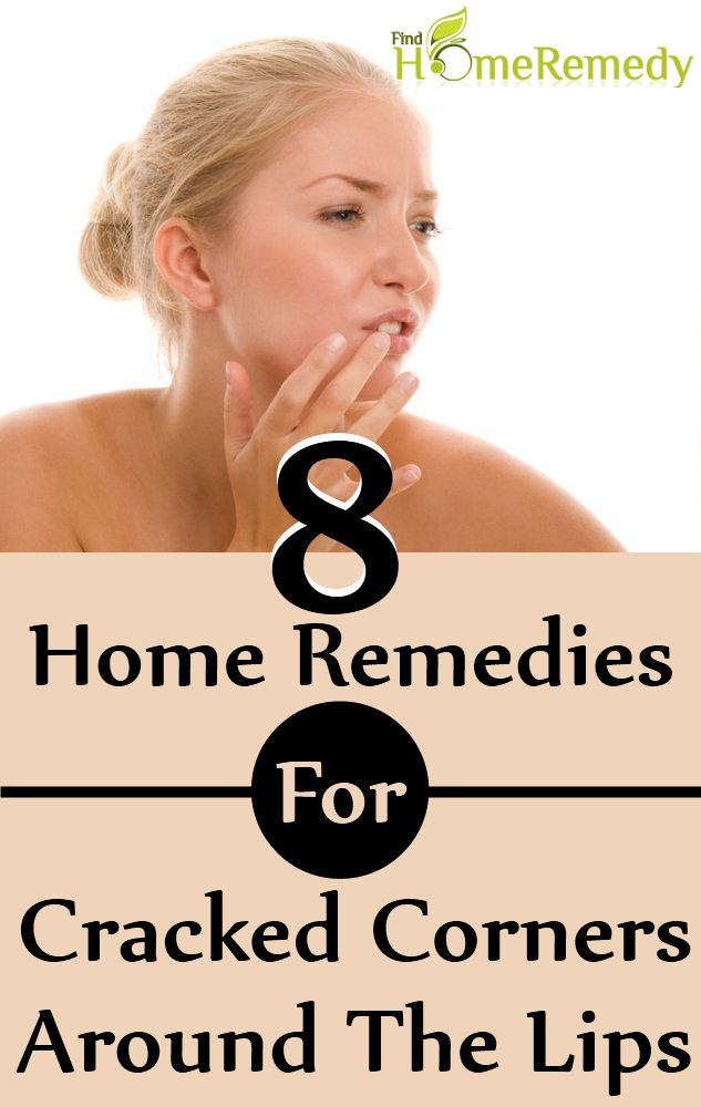 8 Home Remedies For Cracked Corners Around The Lips