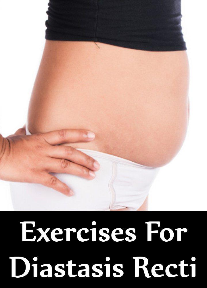 8 Exercises For Diastasis Recti