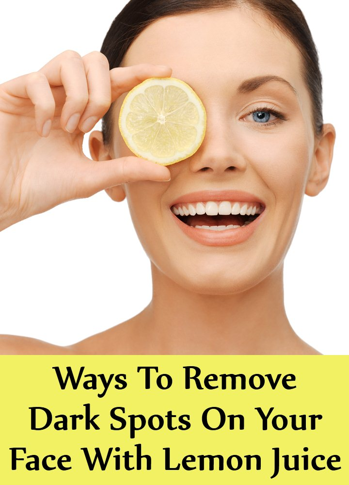 6 Simple Ways To Remove Dark Spots On Your Face With Lemon Juice