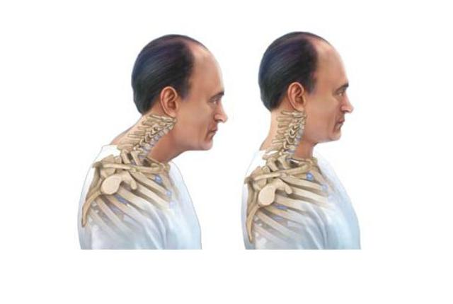 Forward Neck