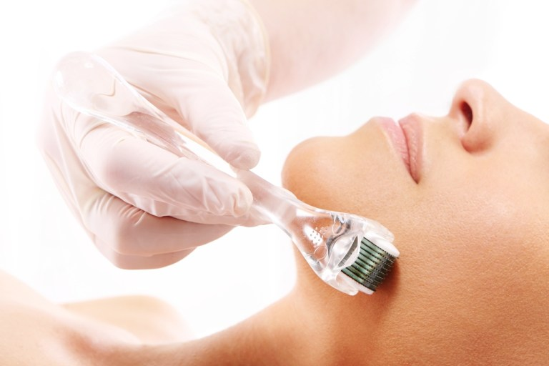 Microneedling – Another Hollywood Beauty Secret