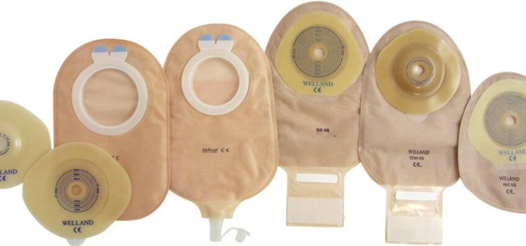 Stoma Bag Answers For The Nervous IBD Patient | FindMeCure