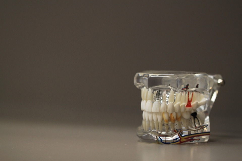 replica of gums