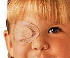 Una bambina affetta da ambliopia