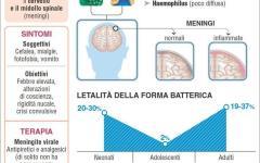 Meningite, cresce l'allarme in Toscana: un'utile tabella per scoprirne natura, cause, letalità, incidenza nei nostri paesi