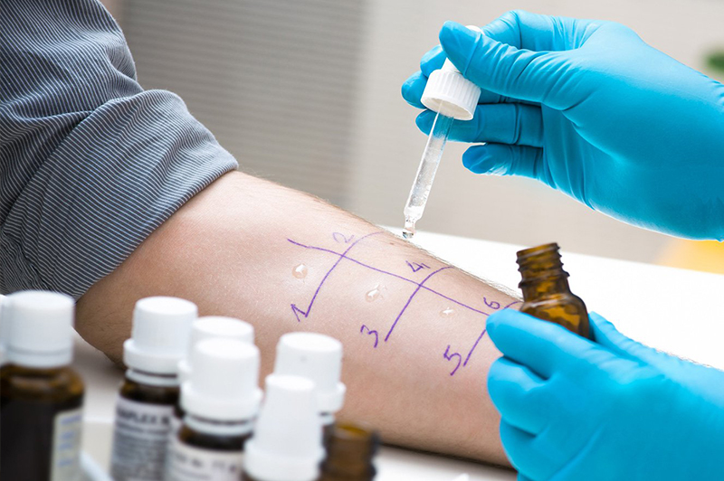 Gloved hands of a doctor administering an allergy test