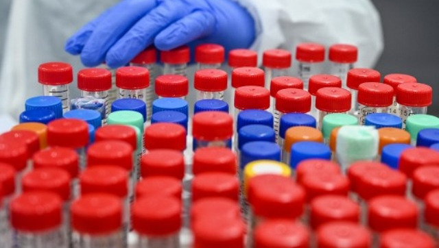 Parliamentary panel red flags rapid antigen tests A look at what makes the testing method contentious
