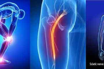 dor ciatica fisiatria