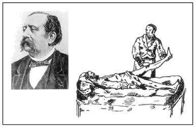 Fig. 1.4 - Lasegue