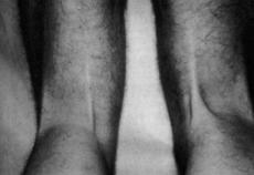 Medial hamstring tendon regeneration