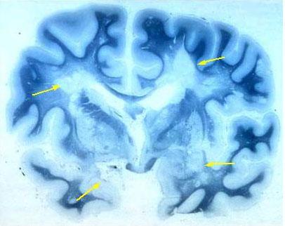 L'ICF nella valutazione riabilitativa della sclerosi multipla