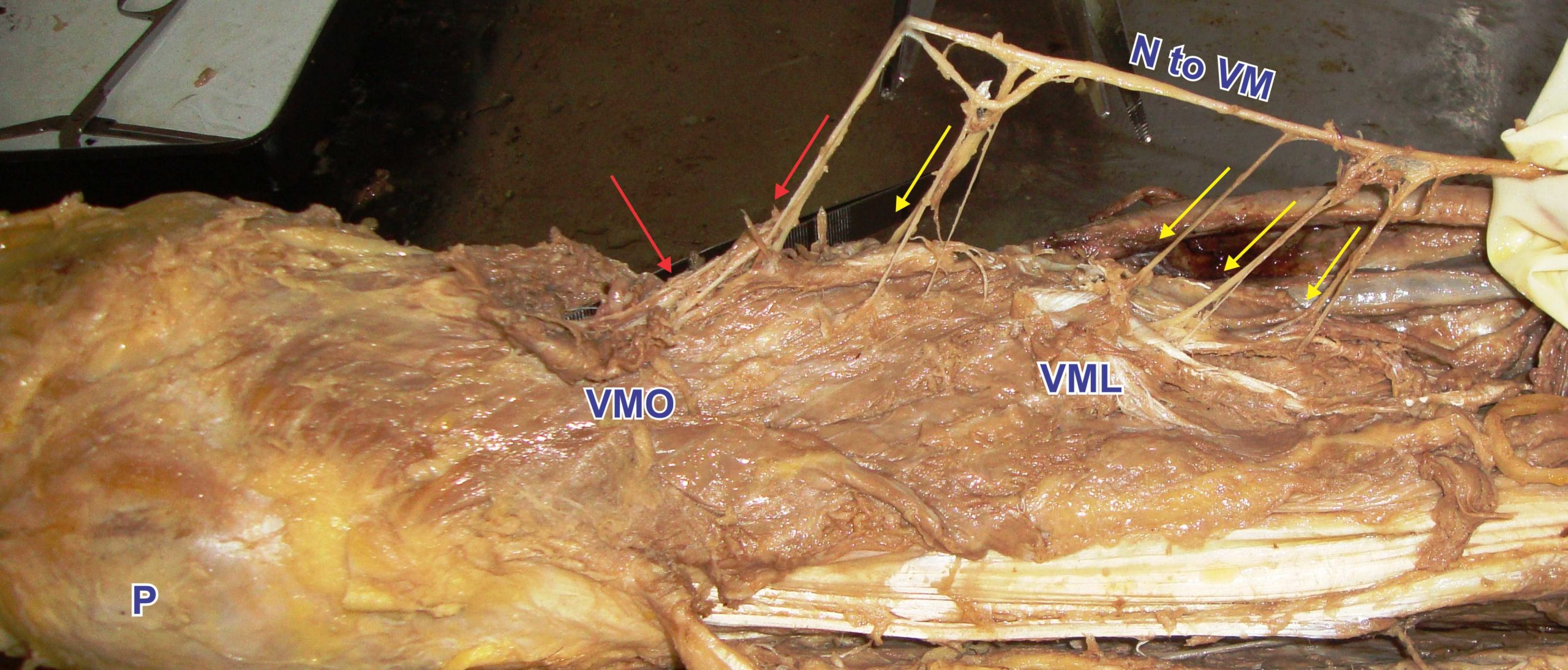 Muscoli nei muscoli: analisi del vasto mediale lungo e del vasto mediale obliquo