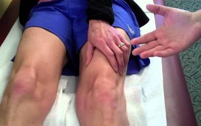 Atrofia del quadricipite e dolore femororotuleo